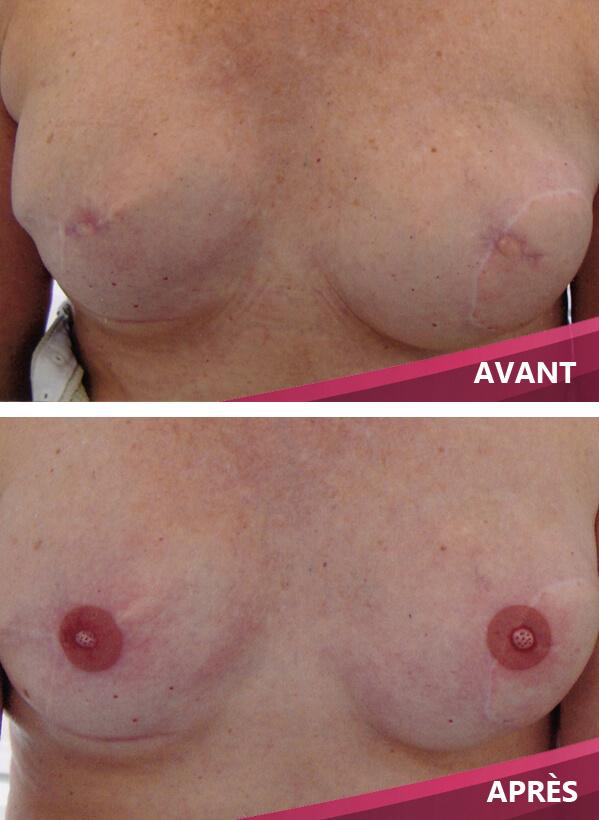 Tatouage des seins et mamelon du sein